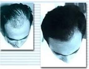 Le moyen estel pour laminirovanie le cheveu